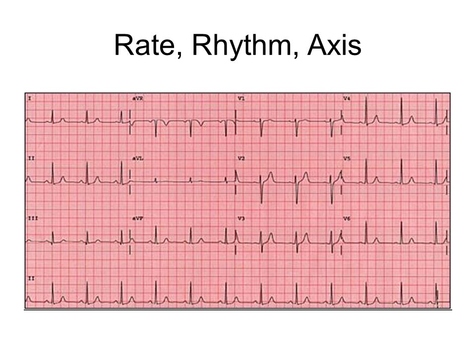 Rate, Rhythm, Axis normal axis