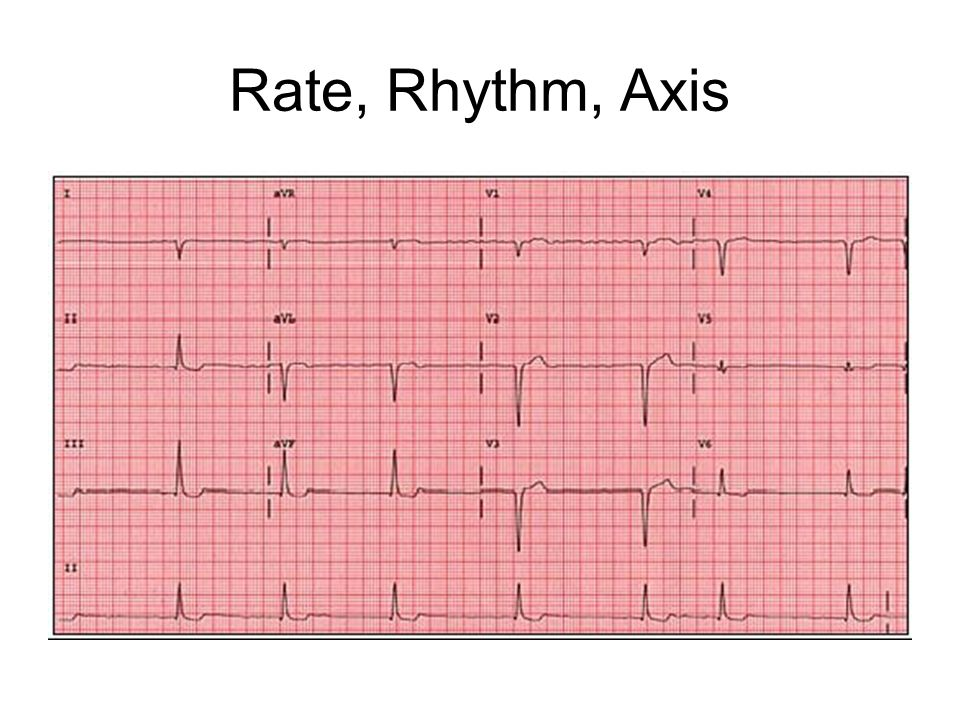 Rate, Rhythm, Axis RAD