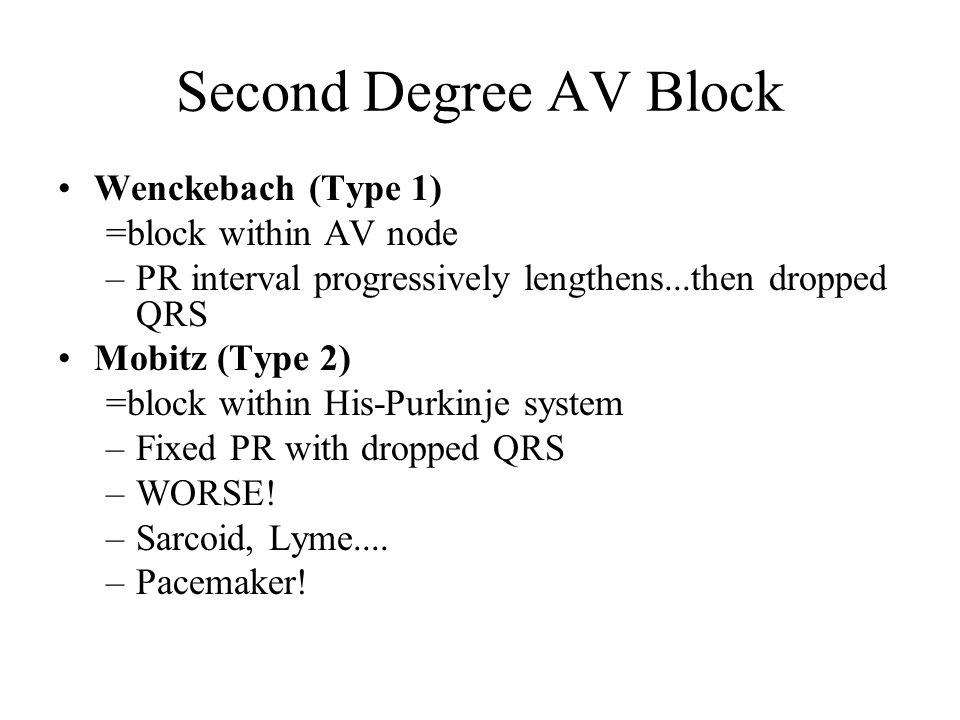 Second Degree AV Block Wenckebach (Type 1) =block within AV node