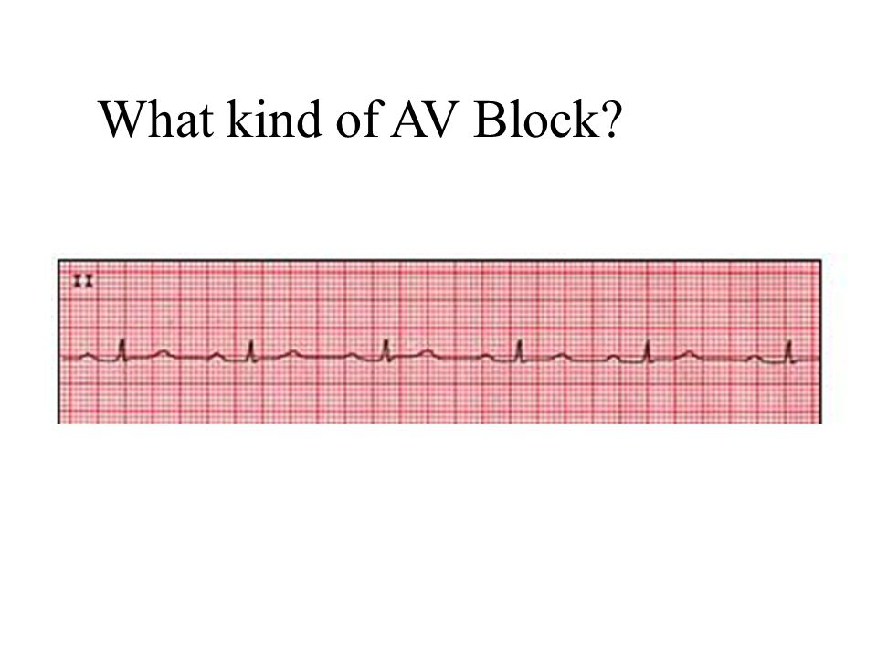 What kind of AV Block 1st degree AV block