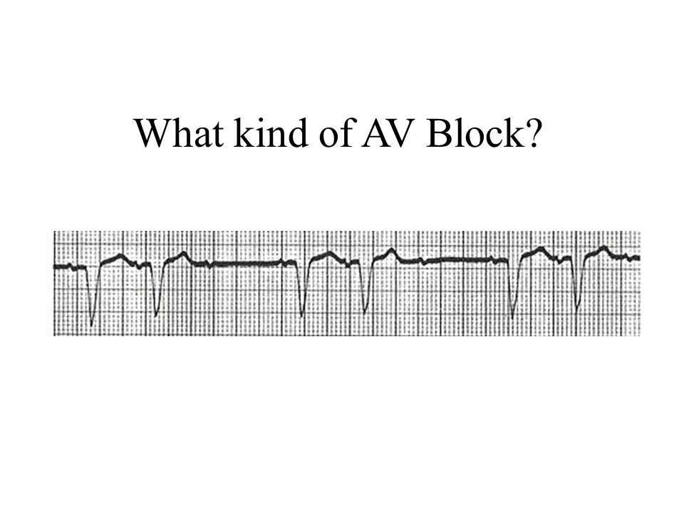 What kind of AV Block 2nd degree AV block Mobitz—fixed PR, dropped QRS