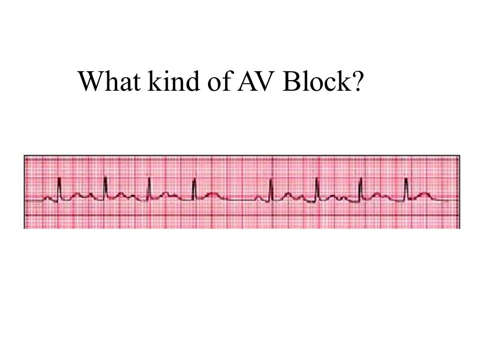 What kind of AV Block Type 1 Wenckebach; progressive PR progression, then dropped QRS