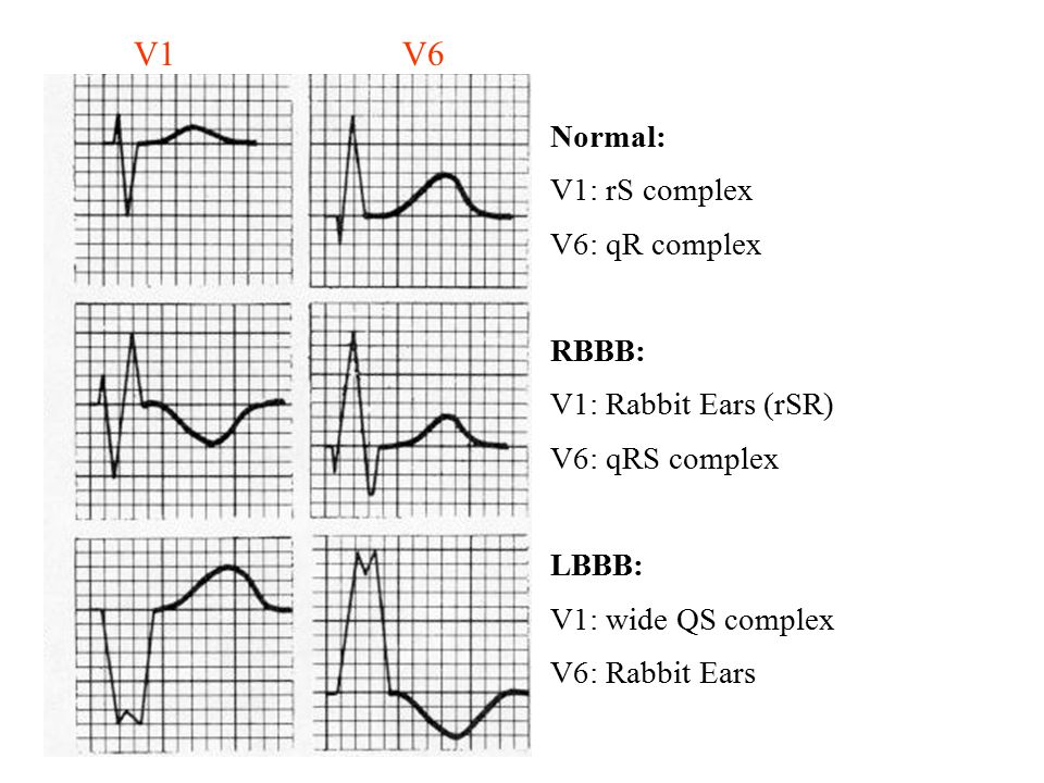 Normal: V1: rS complex V6: qR complex RBBB: V1: Rabbit Ears (rSR)