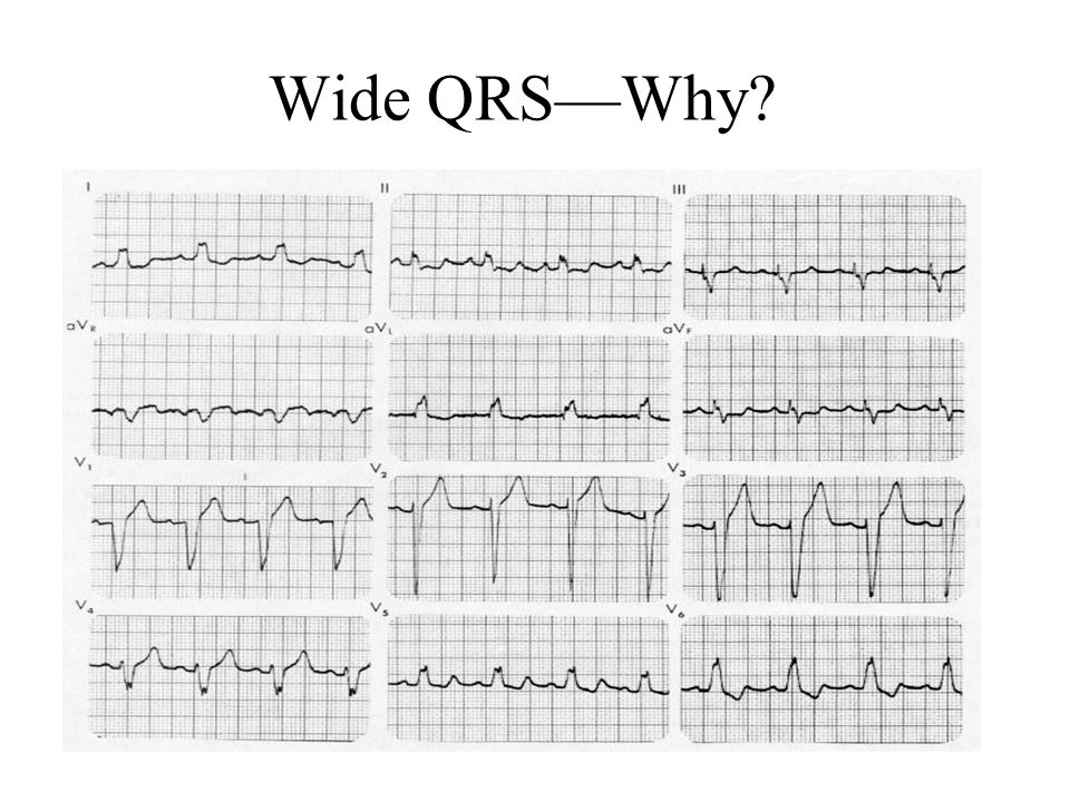 Wide QRS—Why LBBB: V1 has wide QRS, V6 with notched peak. Inv T in V5, V6