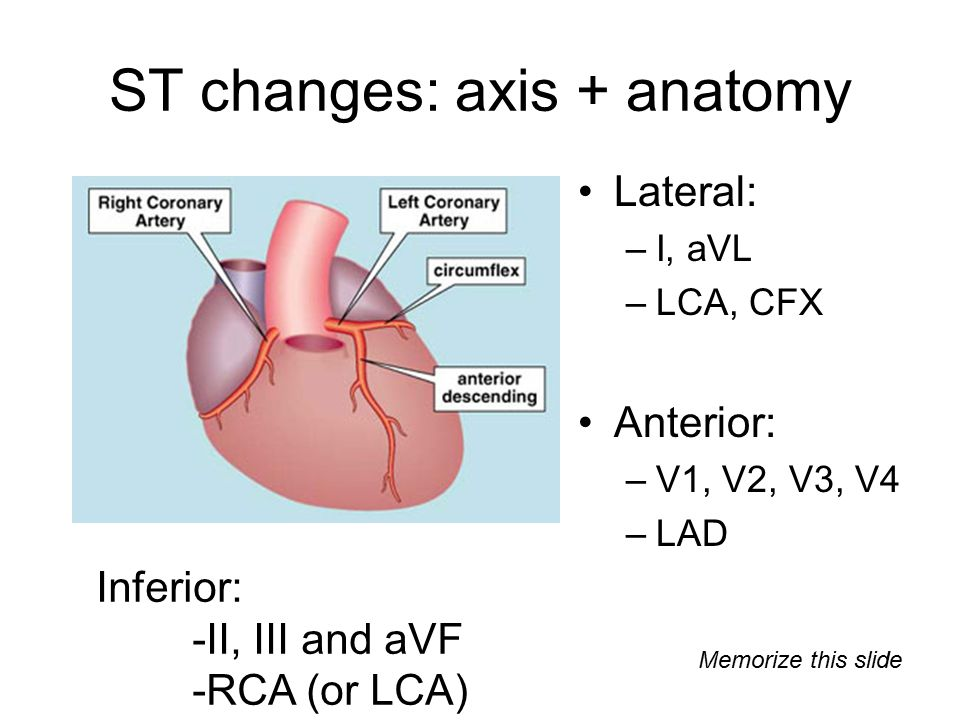 ST changes: axis + anatomy