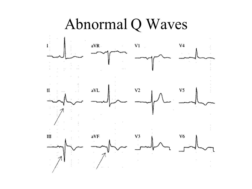 Abnormal Q Waves