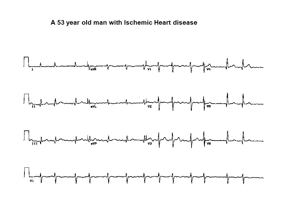 A 53 year old man with Ischemic Heart disease