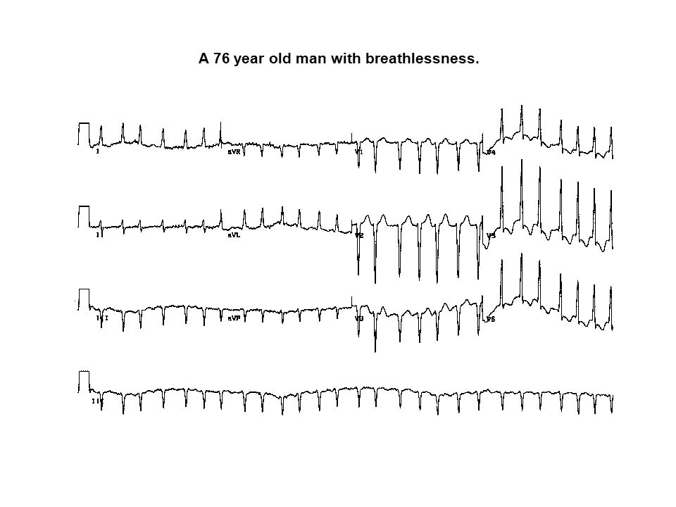 A 76 year old man with breathlessness.
