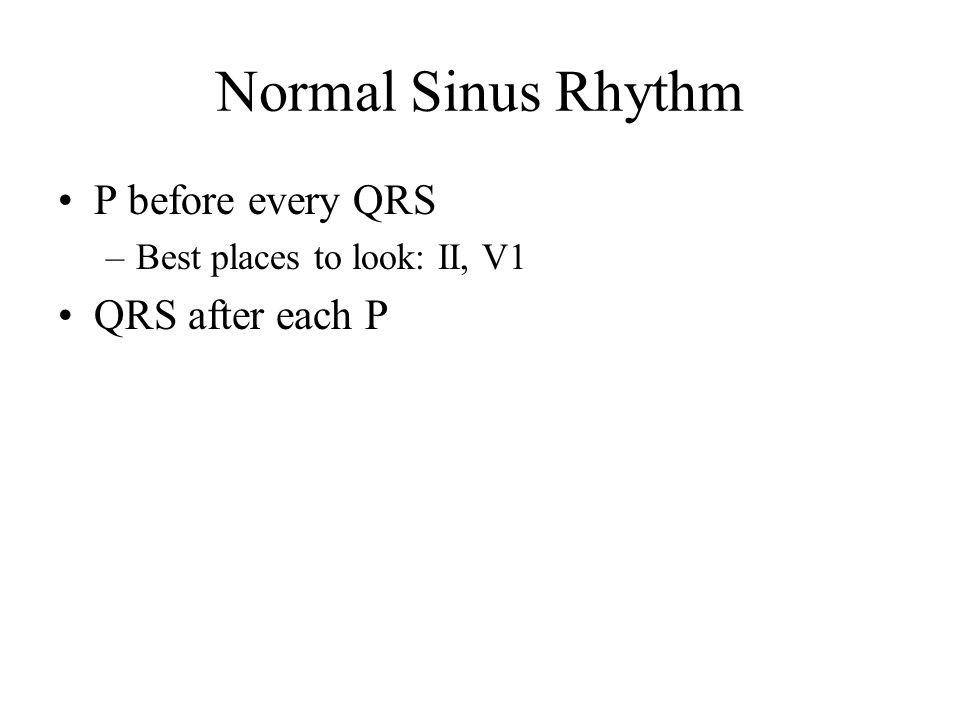 Normal Sinus Rhythm P before every QRS QRS after each P
