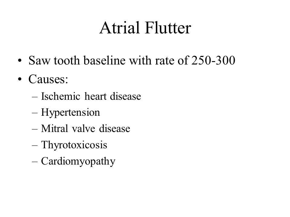 Atrial Flutter Saw tooth baseline with rate of 250-300 Causes: