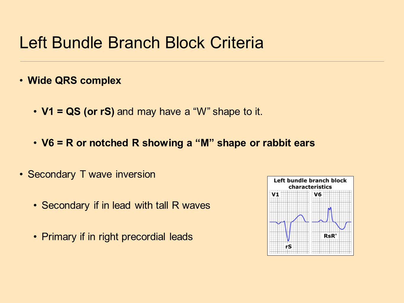 Left Bundle Branch Block Criteria