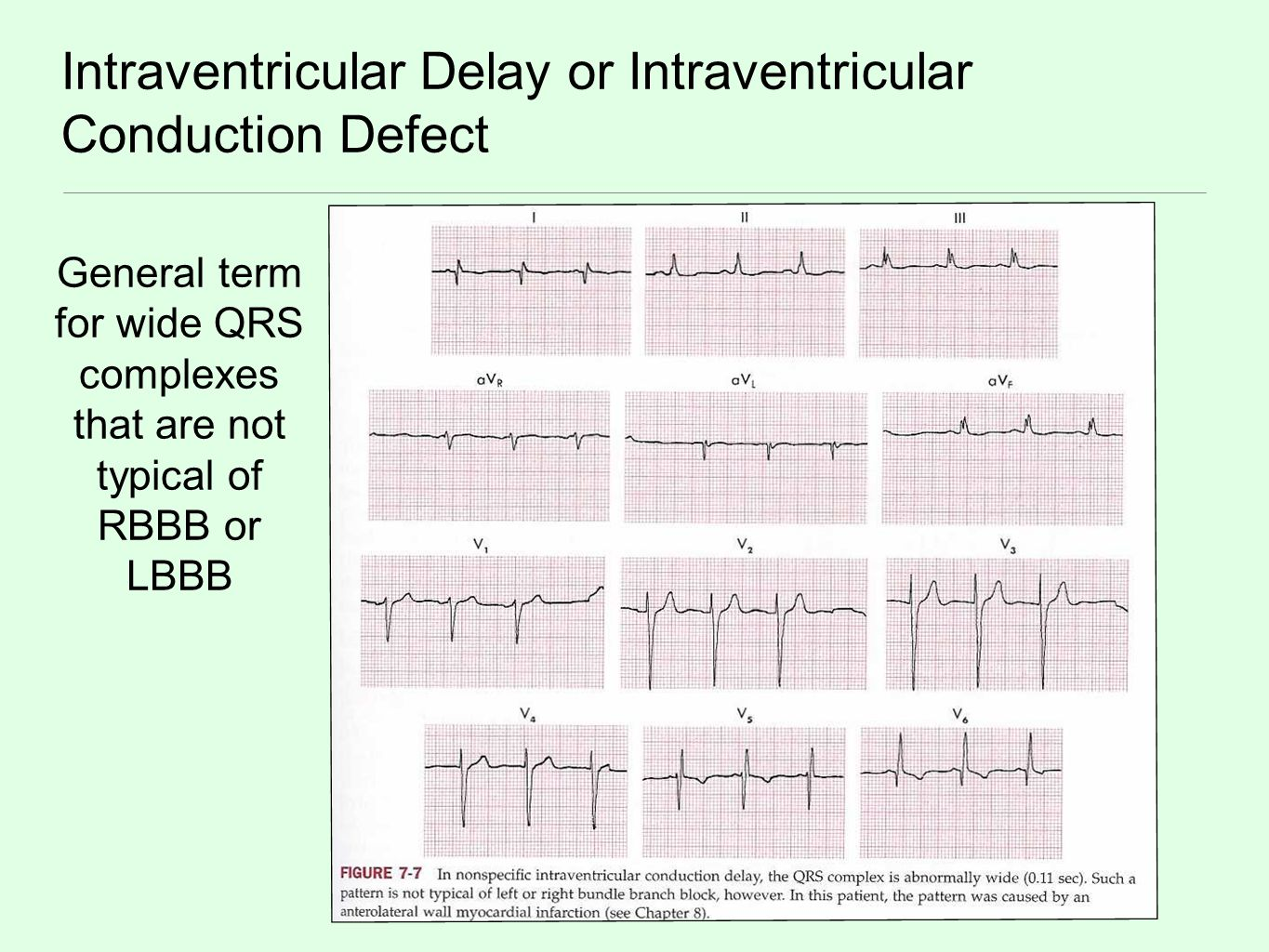 Intraventricular Delay or Intraventricular Conduction Defect