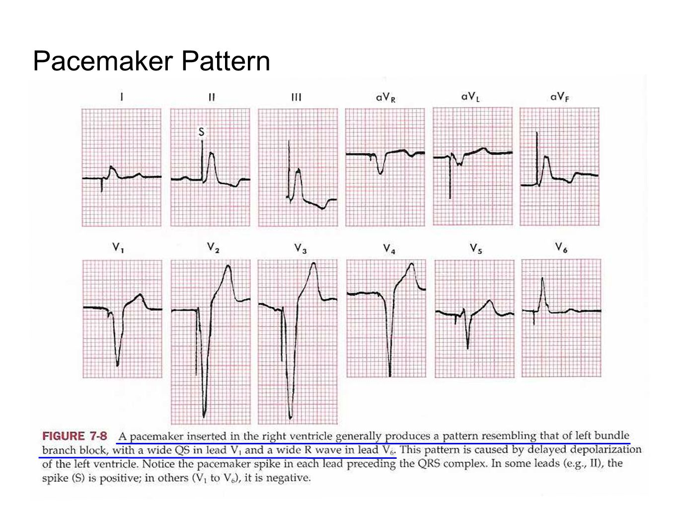 Pacemaker Pattern