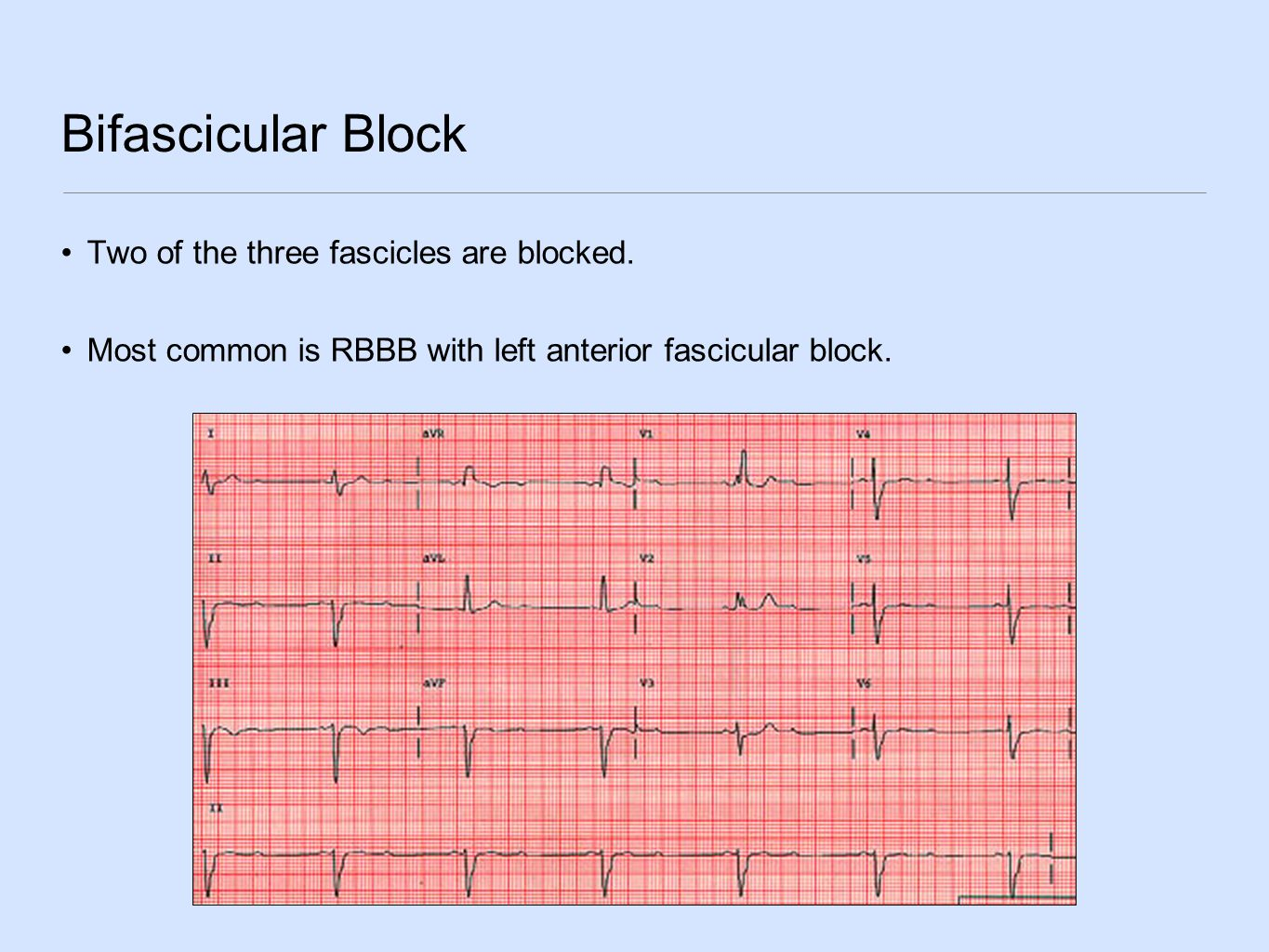 Bifascicular Block Two of the three fascicles are blocked.
