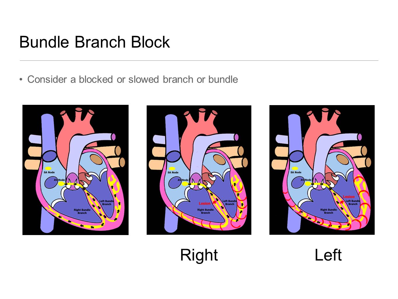Bundle Branch Block Right Left