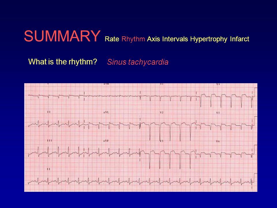 SUMMARY Rate Rhythm Axis Intervals Hypertrophy Infarct