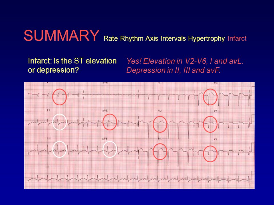 SUMMARY Rate Rhythm Axis Intervals Hypertrophy Infarct