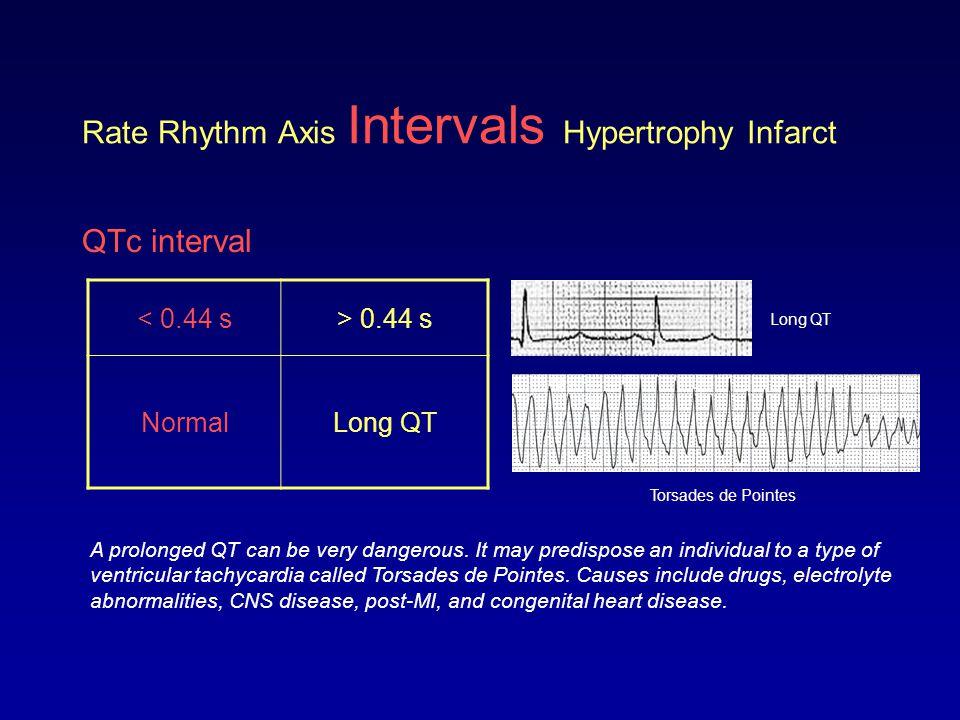 Rate Rhythm Axis Intervals Hypertrophy Infarct