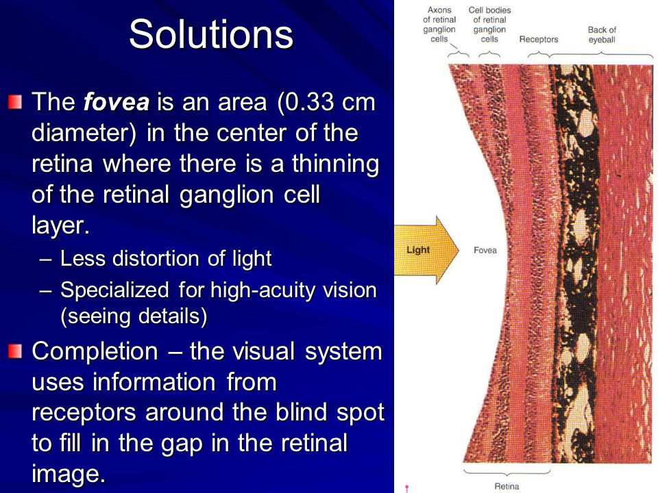 Solutions The fovea is an area (0.33 cm diameter) in the center of the retina where there is a thinning of the retinal ganglion cell layer.