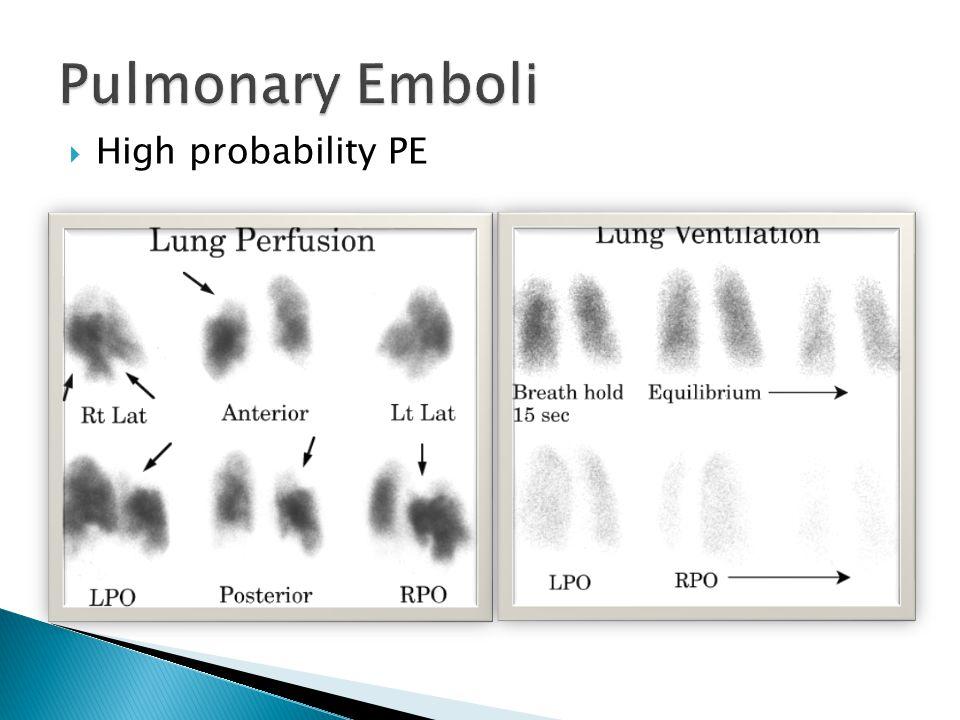Pulmonary Emboli High probability PE