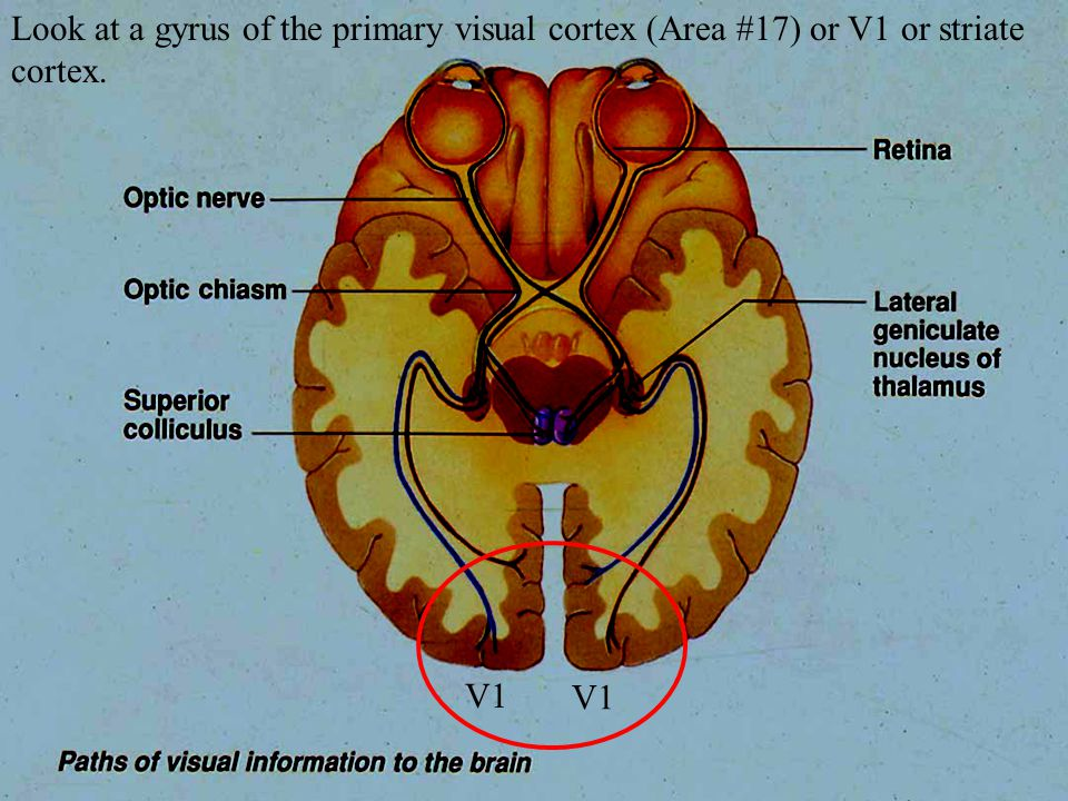 Look at a gyrus of the primary visual cortex (Area #17) or V1 or striate cortex.