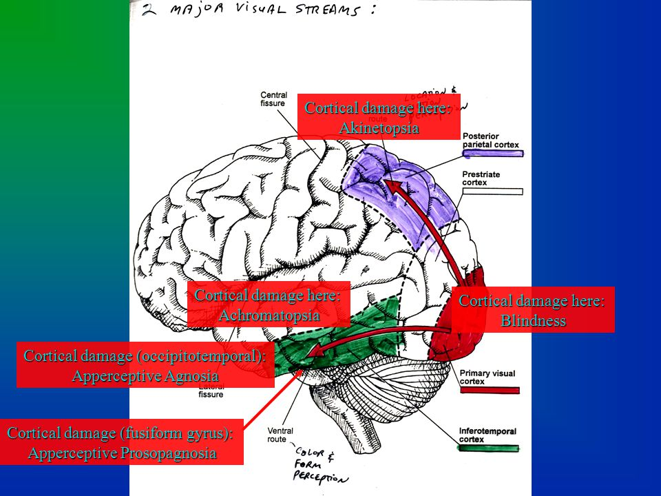 Cortical damage (occipitotemporal): Apperceptive Agnosia