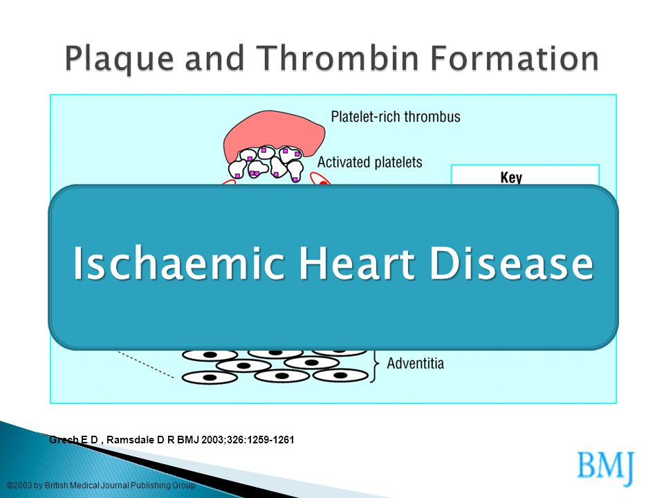 Plaque and Thrombin Formation