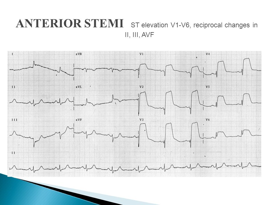 ANTERIOR STEMI ST elevation V1-V6, reciprocal changes in II, III, AVF