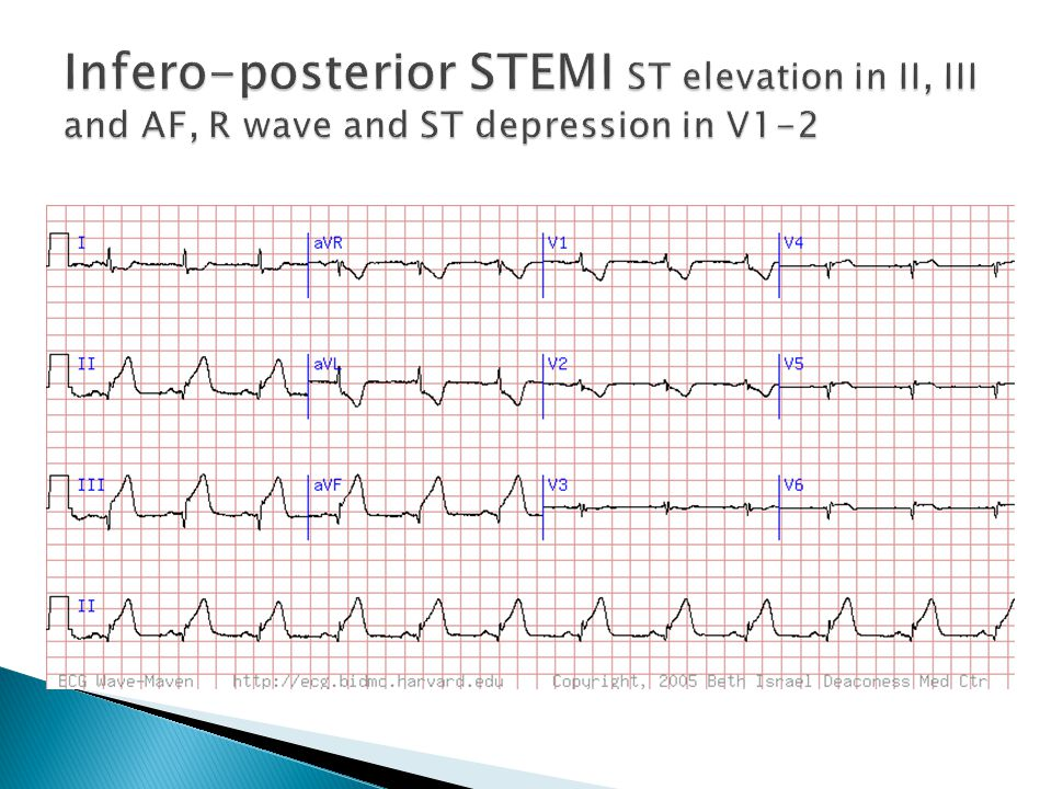 Infero-posterior STEMI ST elevation in II, III and AF, R wave and ST depression in V1-2