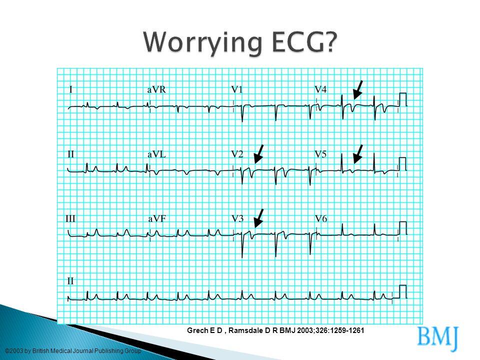 Worrying ECG