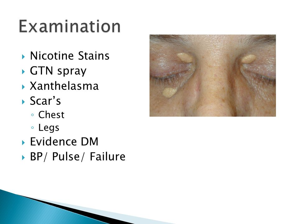 Examination Nicotine Stains GTN spray Xanthelasma Scar's Evidence DM