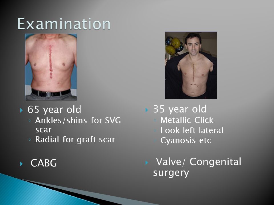 Examination 65 year old 35 year old Valve/ Congenital surgery CABG