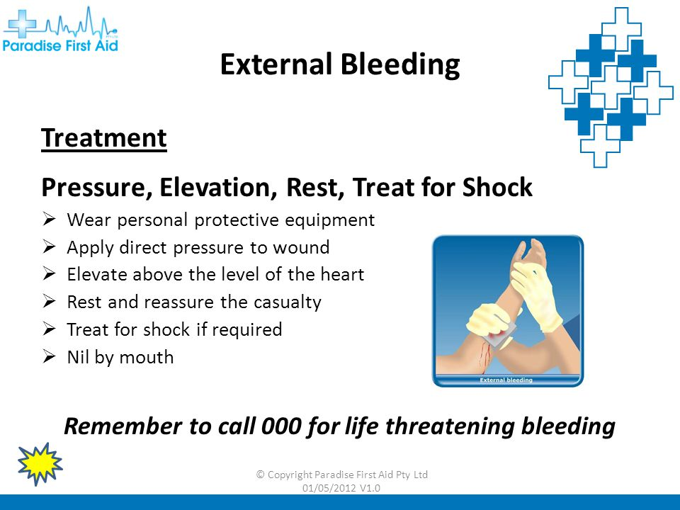 Remember to call 000 for life threatening bleeding