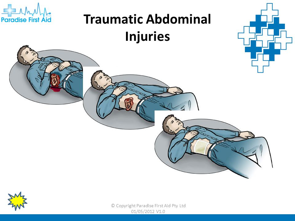 Traumatic Abdominal Injuries