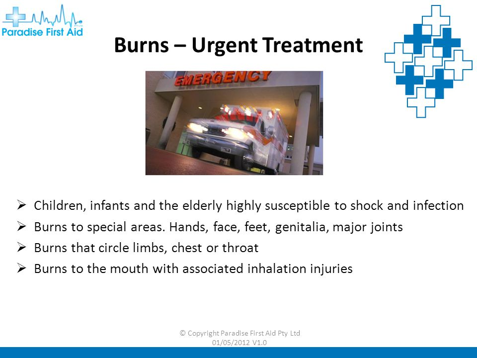 Burns – Urgent Treatment
