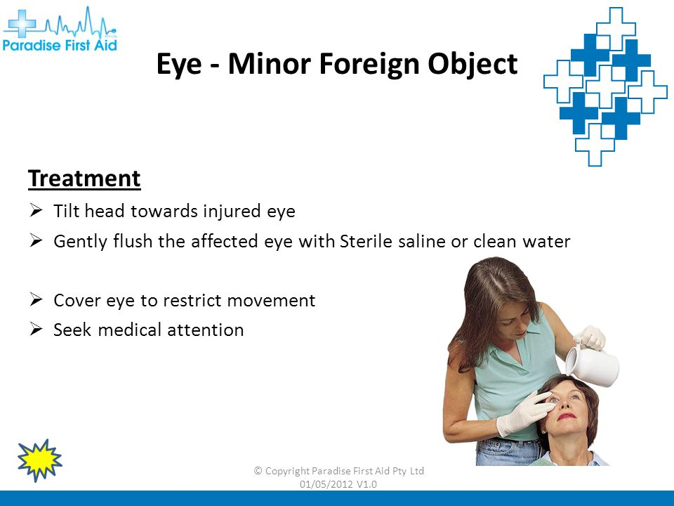 Eye - Minor Foreign Object