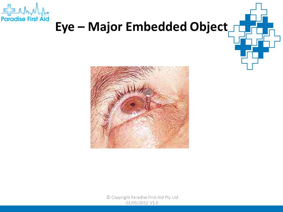 Eye – Major Embedded Object