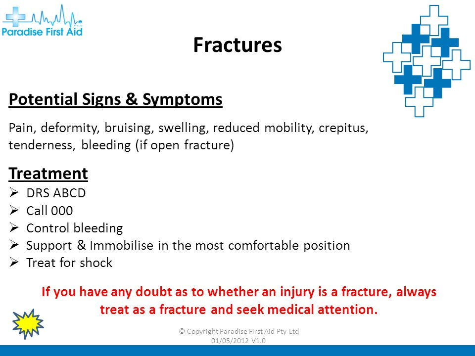Fractures Potential Signs & Symptoms Treatment