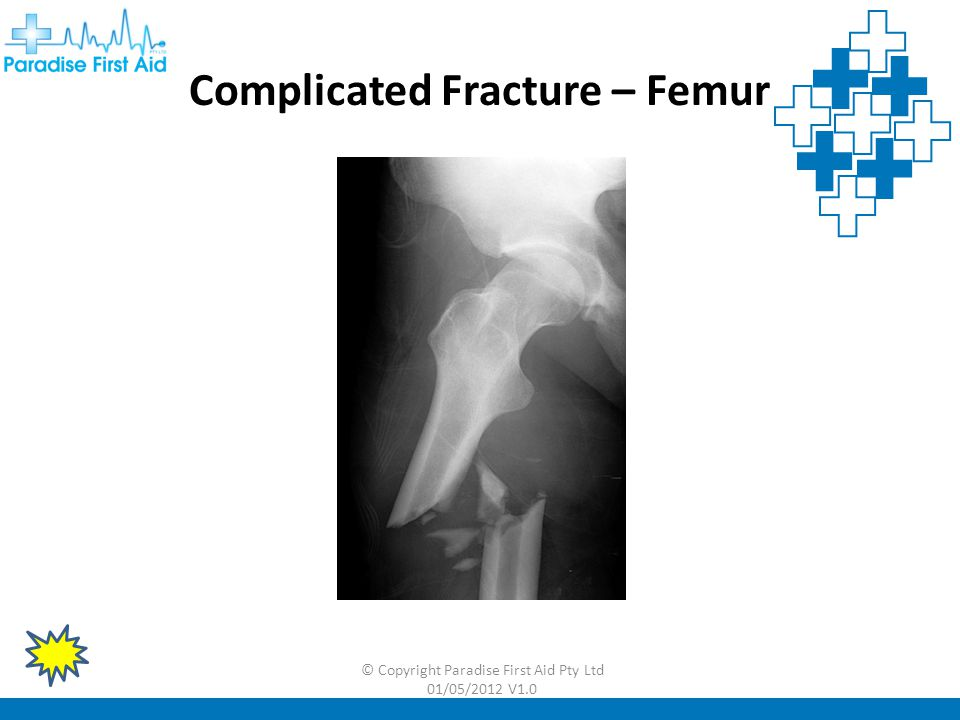 Complicated Fracture – Femur