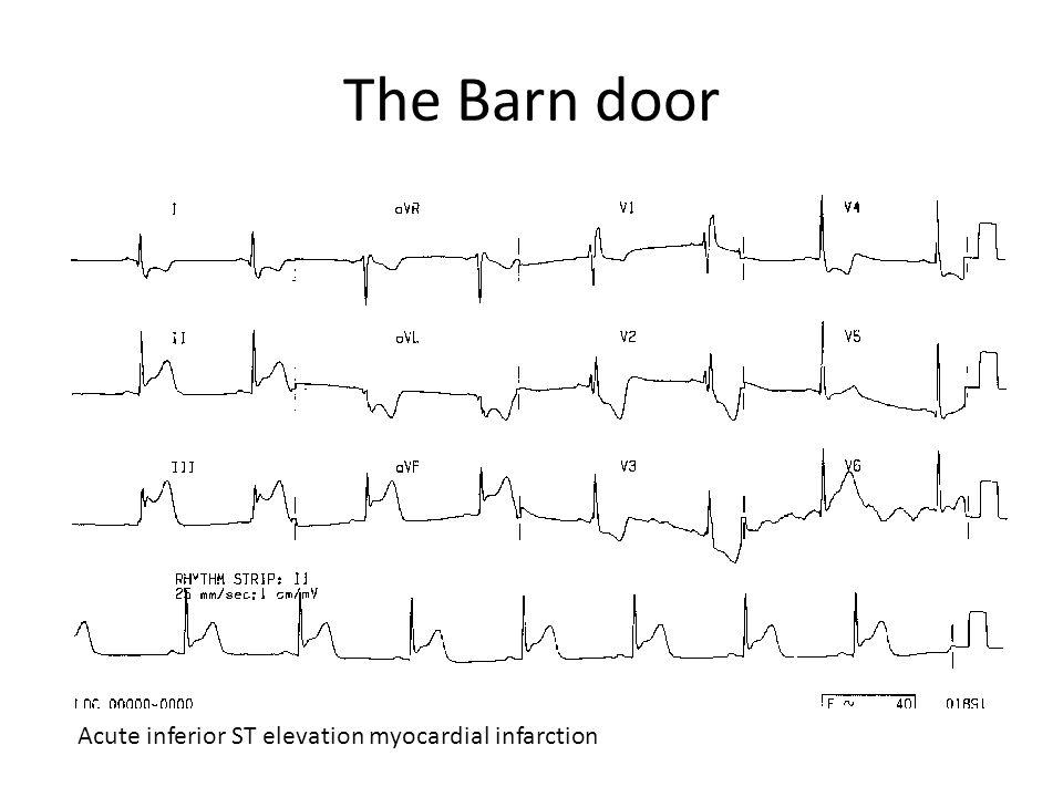 The Barn door Acute inferior ST elevation myocardial infarction