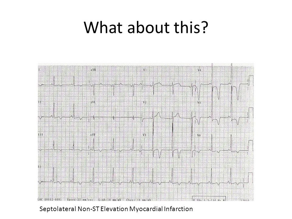 What about this Septolateral Non-ST Elevation Myocardial Infarction