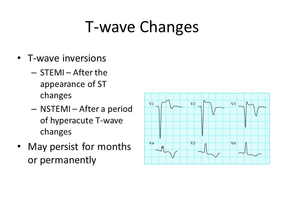 T-wave Changes T-wave inversions May persist for months or permanently