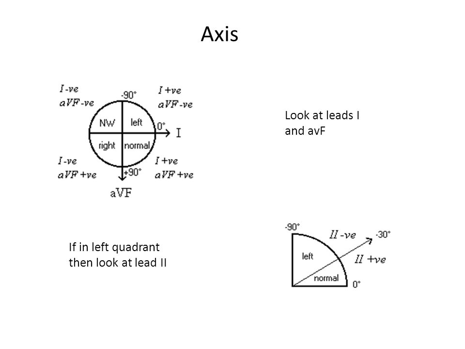 Axis Look at leads I and avF If in left quadrant then look at lead II