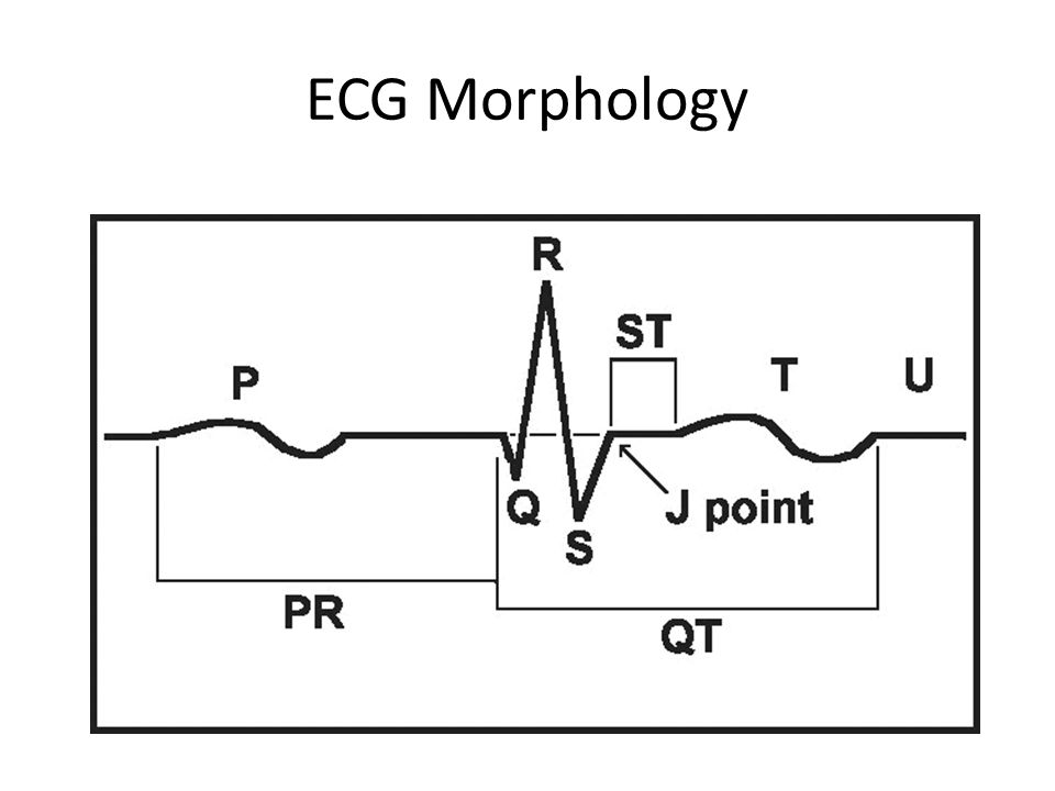 ECG Morphology What do each of the waves mean
