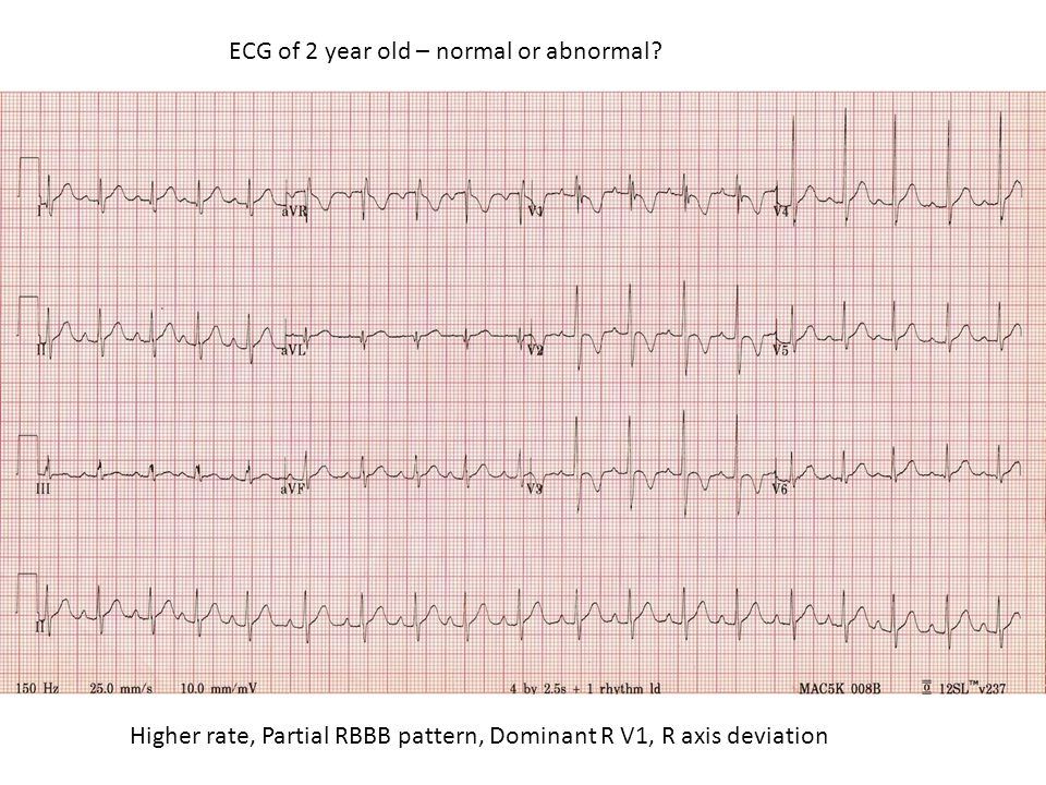 ECG of 2 year old – normal or abnormal