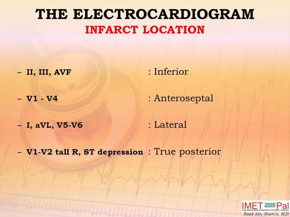 THE ELECTROCARDIOGRAM INFARCT LOCATION