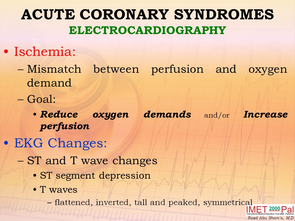 ACUTE CORONARY SYNDROMES ELECTROCARDIOGRAPHY