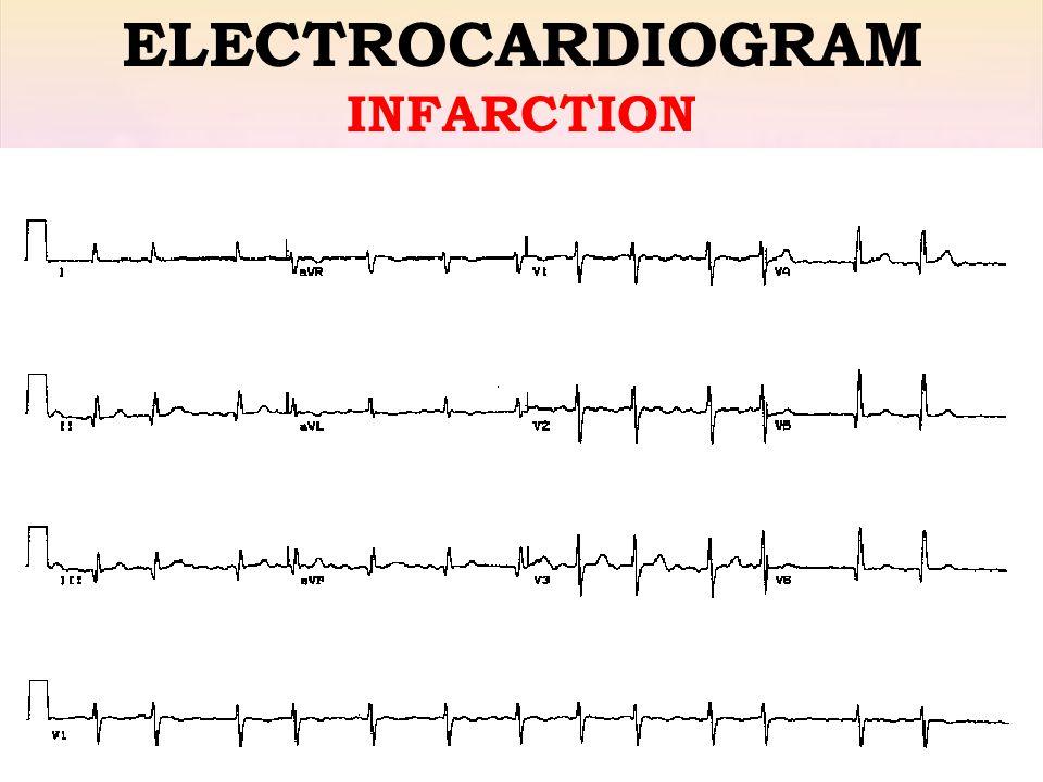 ELECTROCARDIOGRAM INFARCTION