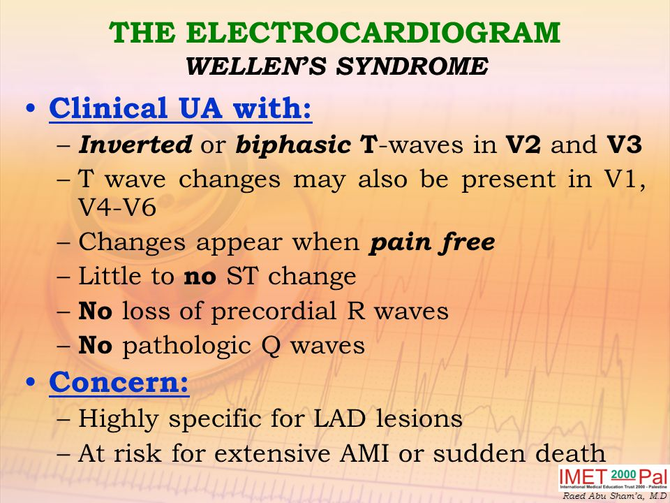 THE ELECTROCARDIOGRAM WELLEN'S SYNDROME