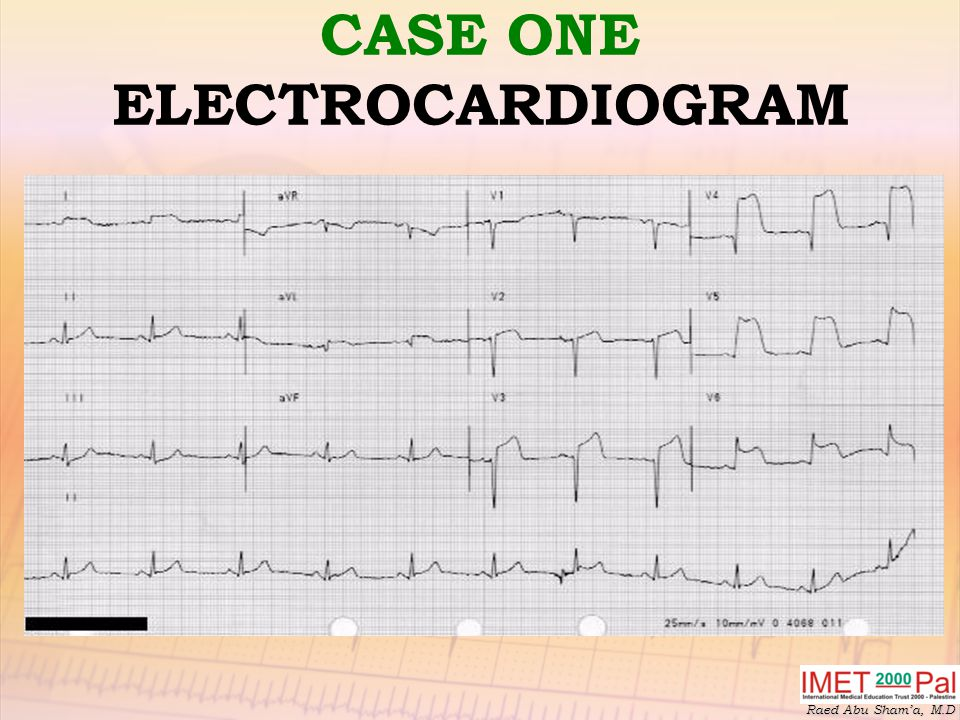 CASE ONE ELECTROCARDIOGRAM